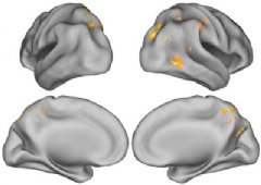 Shown are scans that represent all subjects with beta-amyloid deposits in their brain. The yellow and orange colors show areas where greater brain act