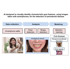 Overview of Periodontal Disease Detection AI