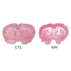 A healthy brain is pictured at left; one suffering intraventricular hemorrhage is pictured at right.